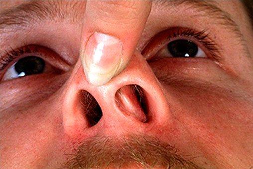 пневмония грибок в носу любом случае комбинированное